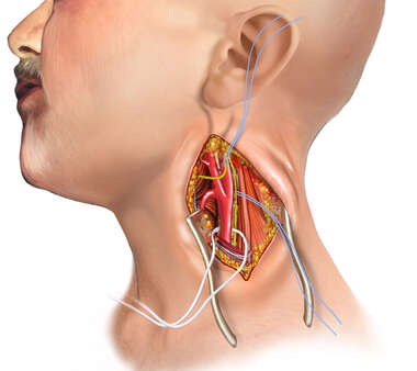 Carotid endarterectomy (CEA) exposure