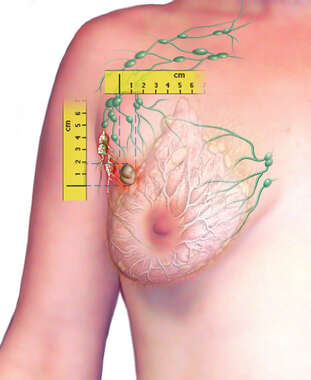 Tumor in Breast
