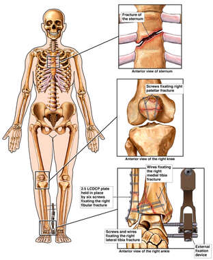 Female Skeletal Figure with Surgical Fixation of the Sternum, Knee and Ankle