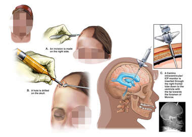 Surgical Placement of Right Frontal Ventriculostomy