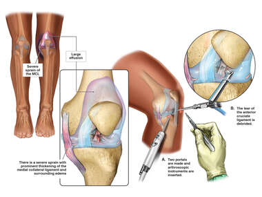 Left Knee Anterior Cruciate Ligament Tear with Surgical Repair