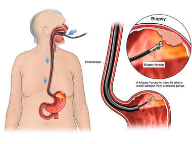 Diagnostic Upper Endoscopy