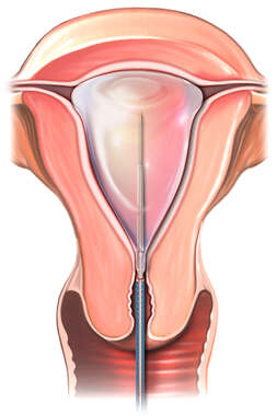Thermal Endometrial Ablation Technique