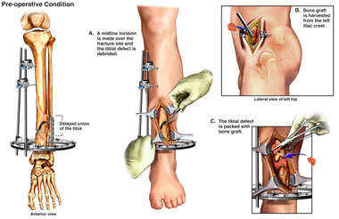Delayed Union of Left Tibia