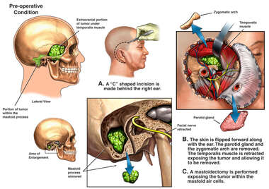 Brain Surgery - Surgical Removal of Extracranial Brain Tumor