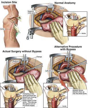 Thoractomy with and without Aortic Bypass