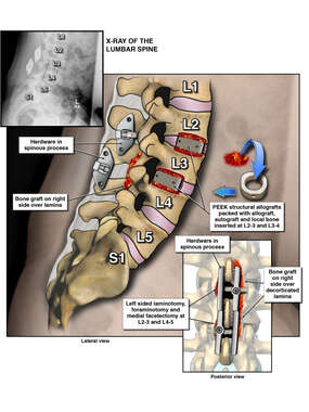 Post-operative Condition of the Lumbar Spine After Bone Fusion of L2-3 and L3-4