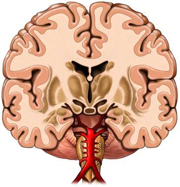 Coronal Section of the Brain
