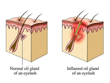 Sty: Sebaceous Glands of the Eyelid