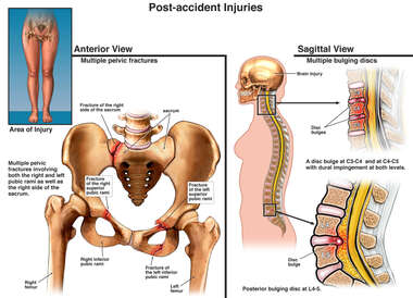 Female Pelvic and Spine Injuries