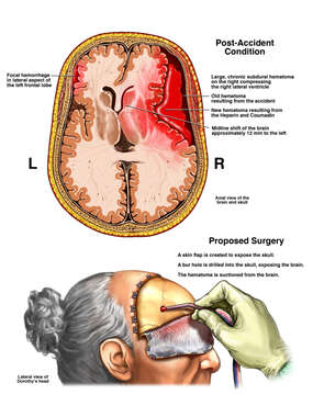 Massive Brain Hemorrhage with Proposed Proper Surgical Treatment
