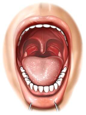 Mouth Anatomy: Open