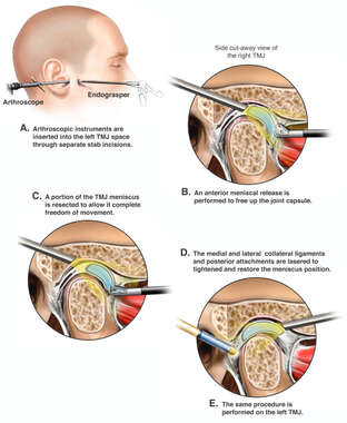 Arthroscopic Repairs of the TMJ