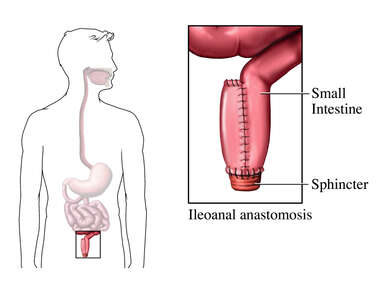Small Bowel Surgery - Ileoanal Anastomosis to Treat Fecal Incontinence