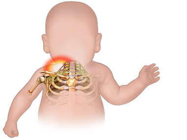 Silhouette of Baby with Brachial Plexus Injury in the Shoulder