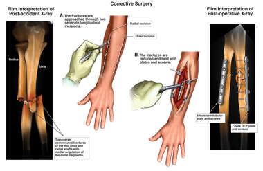 Left Forearm Fractures with Surgical Repairs