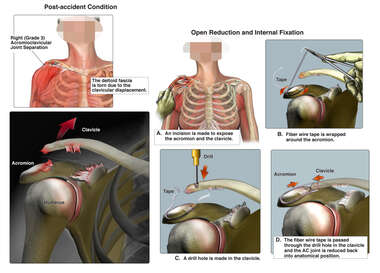 Right Shoulder Separation with Surgical Fixation