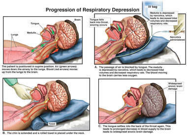 Progression of Respiratory Depression