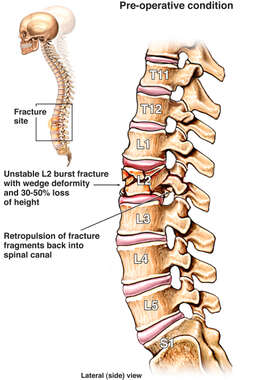 Pre-operative Condition of Lumbar Spine with L2 Compression Fracture
