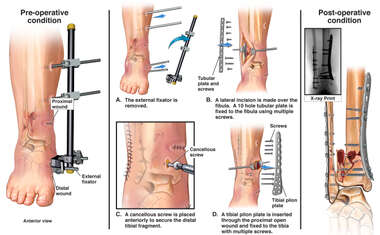Surgical Fixation of the Right Tibia and Fibula
