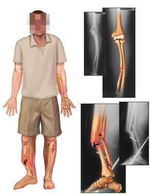Clothed Male Figure with Left Arm Fracture and Open Fracture to the Right Lower Leg