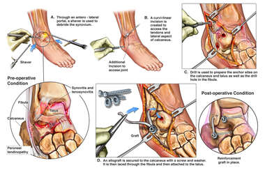 Right Ankle Injury with Surgical Repair