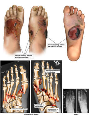 Crushing Injuries to Bilateral Feet