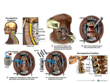 Cervical Spine Injuries with Double Level Anterior DIscectomy and Fusion