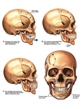 Maxillary and Mandibular Osteotomies and Reconstruction Procedure