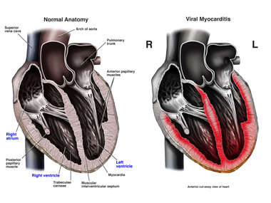 Viral Myocarditis (Inflammation of the Cardiac / Heart Muscle)