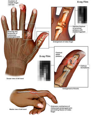 Left Hand Injuries