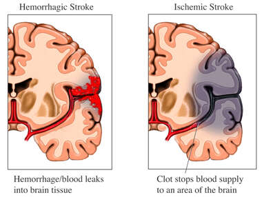 Hemorrhagic vs. Ischemic Stroke