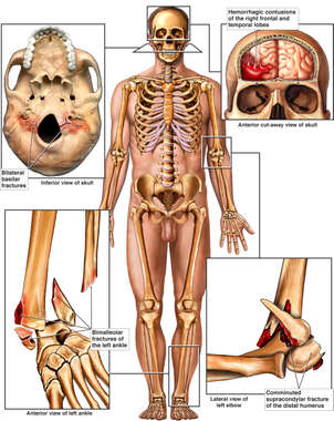 Male Skeletal Figure with Post-accident Injuries to the Skull, Brain, Elbow and Ankle