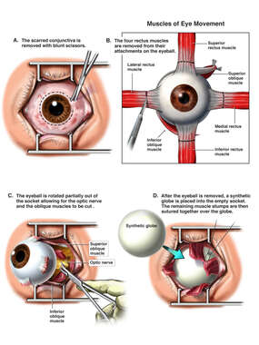 Enucleation of the Right Eye
