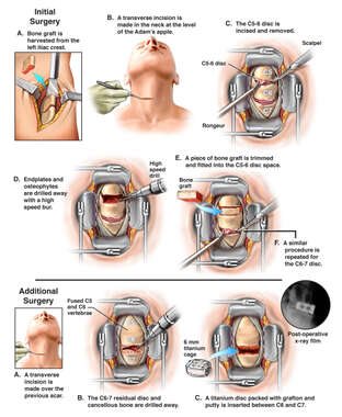Double level Anterior Cervical Fusion and Surgical Revision