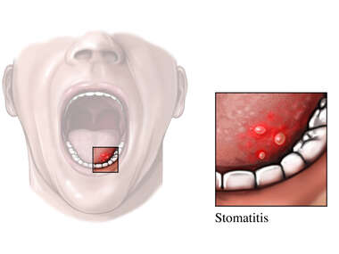Mouth Sore - Stomatitis
