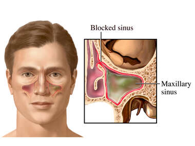 Blockage of Passageway to Sinus