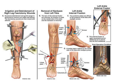 Surgical Procedures on the Legs