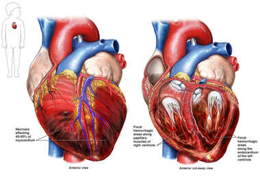 Fatal Heart Condition