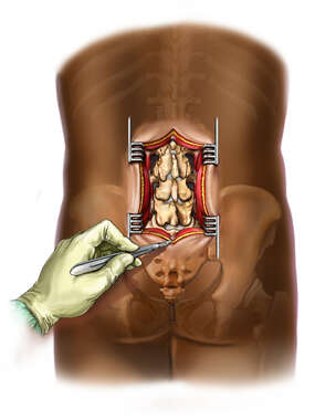 L3-5 Lumbar Incision and Exposure