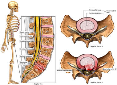 Lumbar Disc Injury