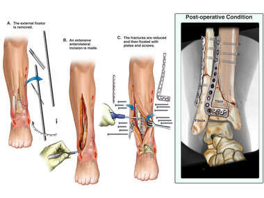 Surgical Fixation of Right Lower Leg Fractures