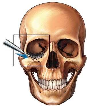 Eye Socket Fracture Repair