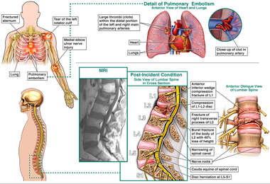 Injuries to the Left Shoulder, Left Elbow, Thorax, and Lumbar Spine.