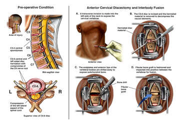 Anterior C5-6 Discectomy and Interbody Fusion