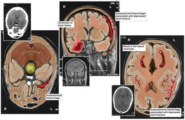 Post-accident Brain Injuries