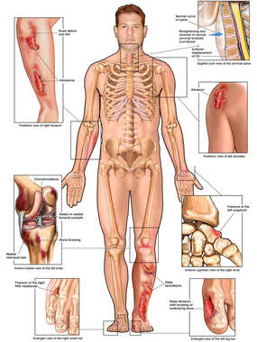 Injuries to the Neck, Arm, Shoulder, Knee, Wrist and Feet