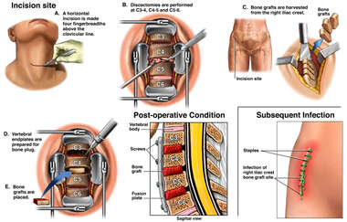 Anterior Cervical Discectomy and Fusion with Subsequent Infection of Graft Harvest Site