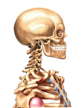 Clavicular Fracture: Lateral view