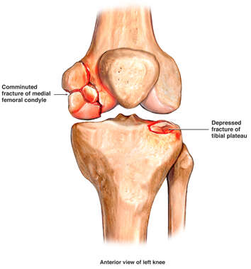 Comminuted Fracture of Medial Femoral Condyle